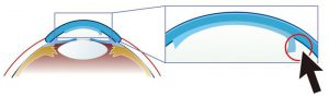 dsaek-descemet-stripping-automated-endothelial-keratoplasty_L