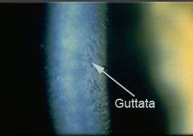 Cornea Guttata o Distrofia Corneale di Fuchs
