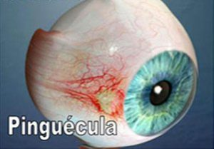 pinguecola